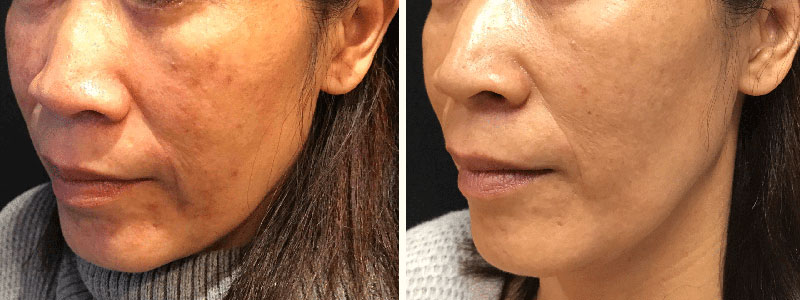 Melasma-Yag-Laser-60200-62yo-Asian-Female-BeforeandAfter2Treatments-LeftCheek-CROP